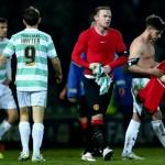 Kemenangan Manchester United Atas Yeovil Dibayar Mahal